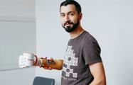 Как минский программист совершил прорыв в медицине