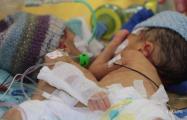 В Швейцарии успешно разделили сиамских близнецов