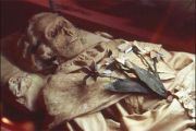 Венгерские мумии XVIII века рассказали о судьбе европейского туберкулеза