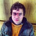 Россия требует от Украины извинений за избитого журналиста