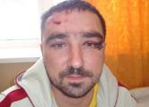 Суд отправил на пересмотр дело избитого милицией жителя Дзержинска