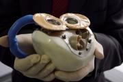 Во Франции умер второй обладатель искусственного сердца