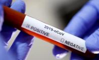 Экспресс-тесты на коронавирус COVID-19 будут проводить в Беларуси