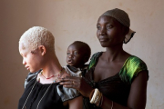 Полицейским в Малави разрешили стрелять по похитителям альбиносов