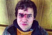 Союз журналистов Украины рассказал об «уничтожении» прессы спецназом
