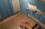 Состояние подстреленного милицией минчанина скрывают от родственников